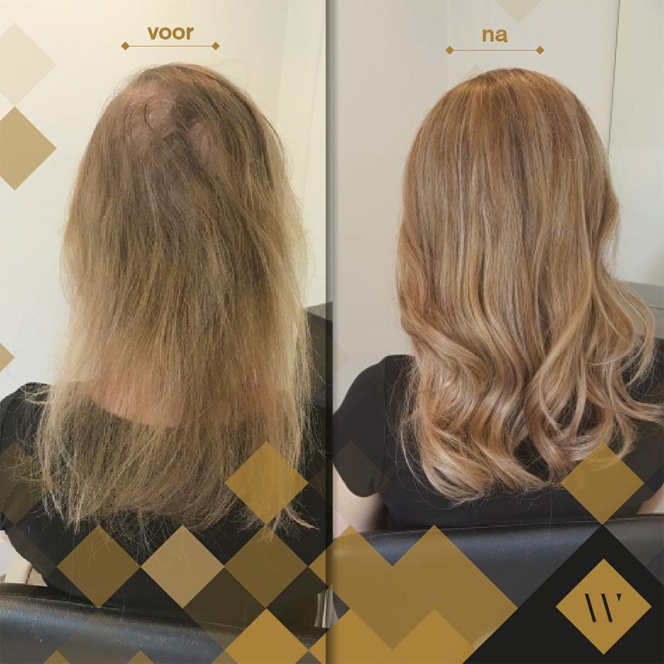 Haarwerk of pruik bij haarverlies in Poeldijk Westland