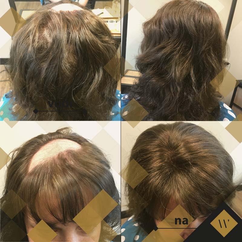 Alopecia Areata - kaalheid - haarenhuidinstituutwestland