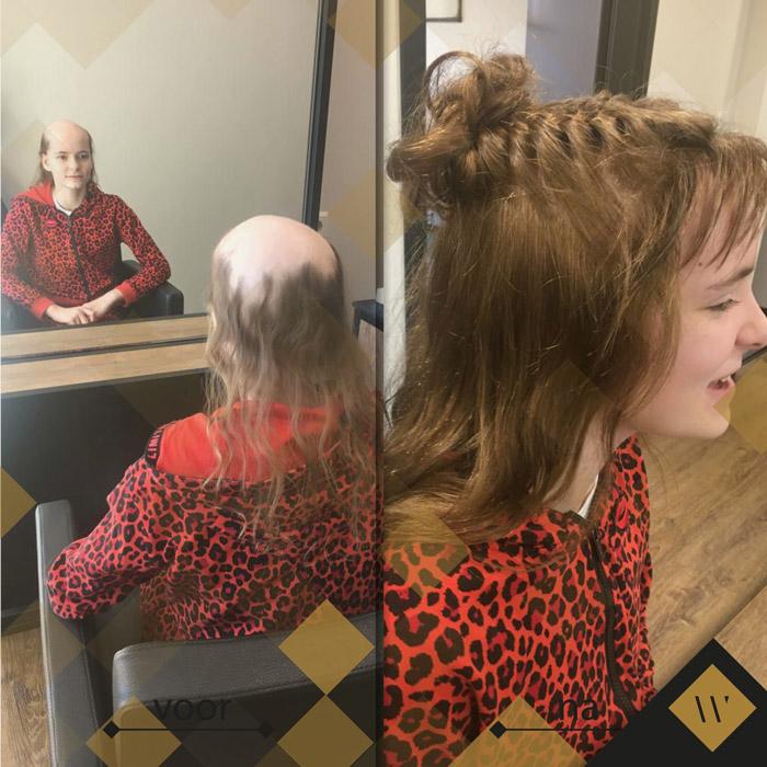 Alopecia areata - pleksgewijze kaalheid - haarwerk
