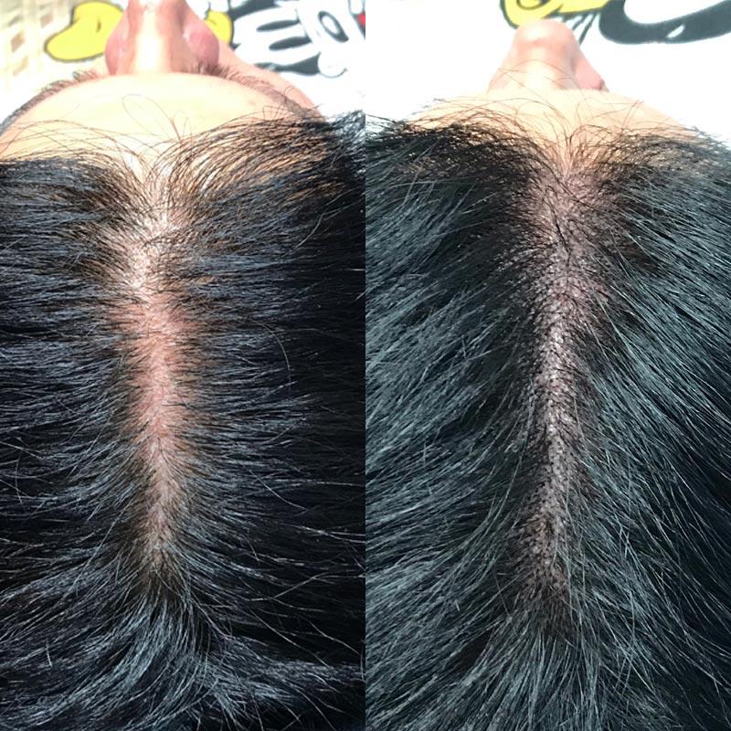 Micro haar pigmentatie voor en na
